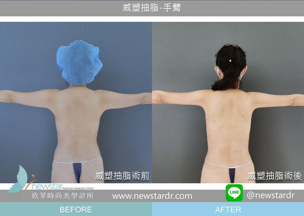 二代威塑抽脂Vaser 2.2 |欣莘時尚美學診所