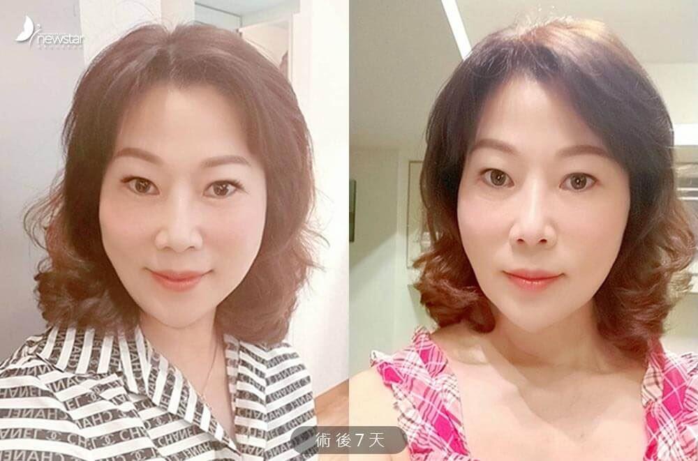 【埋線拉提分享】美魔女Roberca | 減齡大作戰|欣莘時尚美學診所