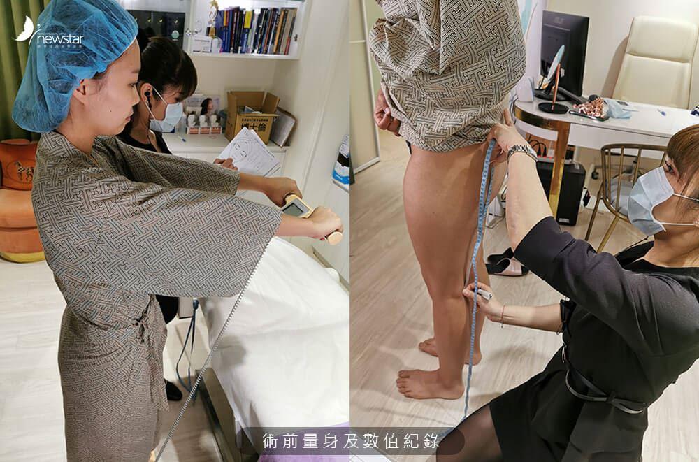 【素人抽脂分享】複合式大腿環狀抽脂案例 | Karman變身鉛筆腿的秘技 | 欣莘時尚美學診所