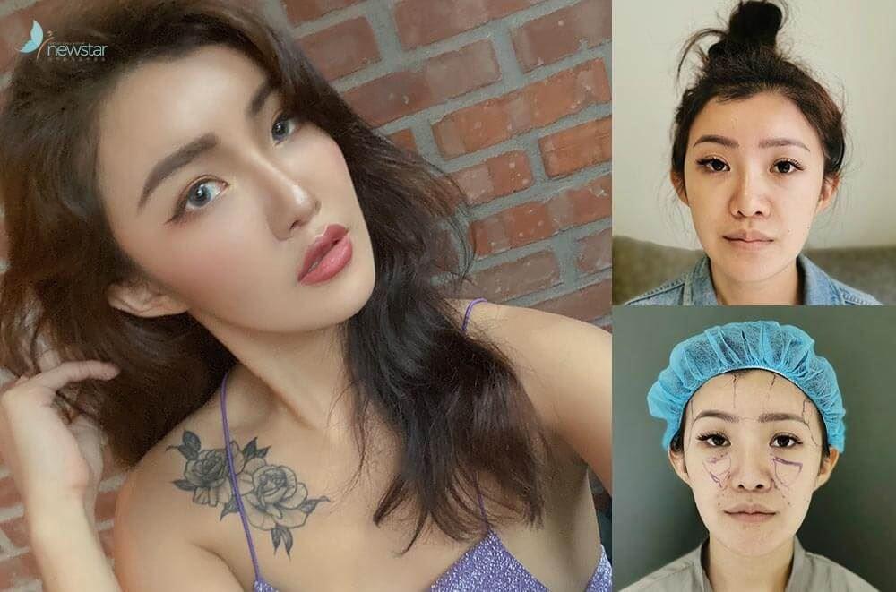 【案例分享】Joanne自體脂肪豐臉,和苦命臉說再見!!|欣莘時尚診所